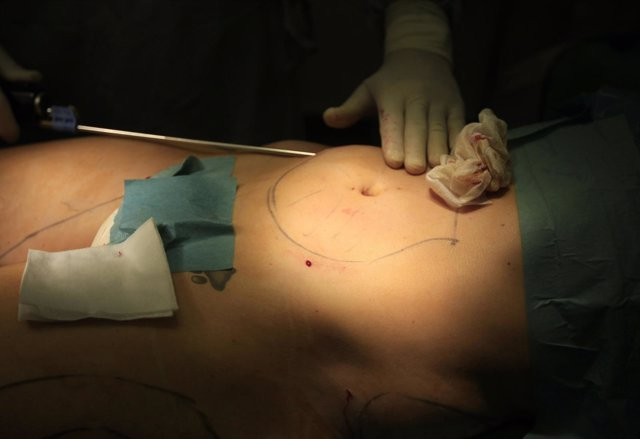 Operación de liposucción
