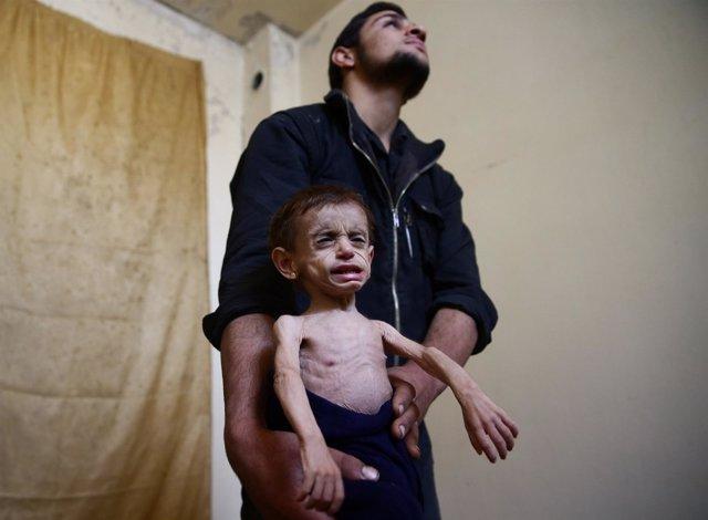 Una niña con graves signos de desnutrición en Ghuta Oriental