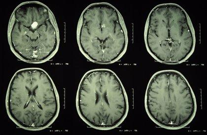 Identifican un posible estimulante del crecimiento tumoral