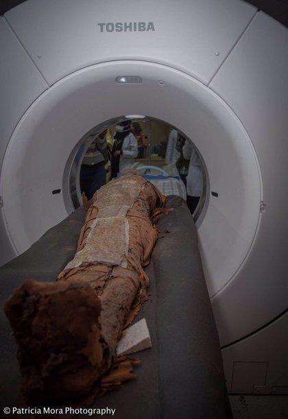 Identifican en torno a 2000 a.C el caso más antiguo de cáncer de mama