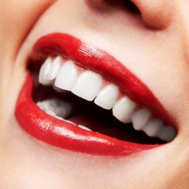 Cosmética dental. Dientes. Boca. Sonrisa