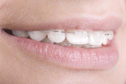 Más del 50% de los españoles llevan, o han llevado, ortodoncia
