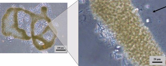 Colonia formada por células de la cianobacteria Microcystis aeruginosa
