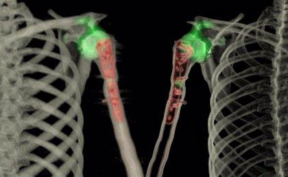 Empresas.- El Hospital Quirónsalud Madrid expone una decena de imágenes diagnósticas SPECT-TAC