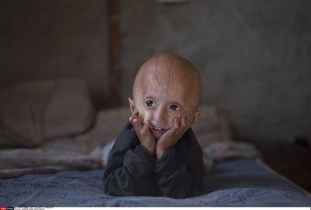 Franco Villavicencio, niño de cuatro años que sufre progeria