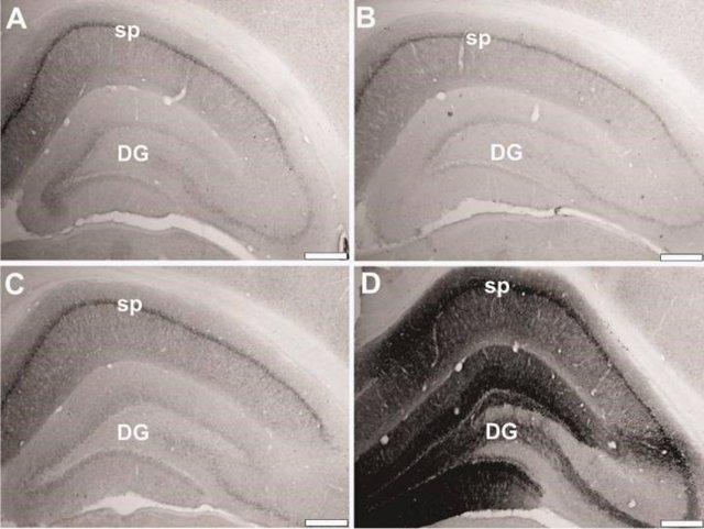 Rstauran genes envejecidos en ratas