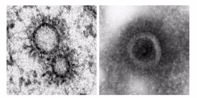 Virus gripe