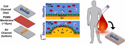 Diseñan un chip que recrea cómo se produce la aterosclerosis