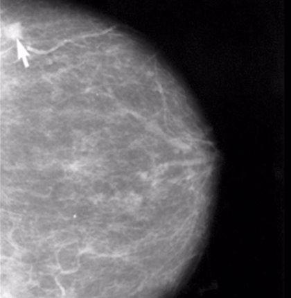 Las células inmunes juegan un papel clave en la metástasis temprana del cáncer de mama