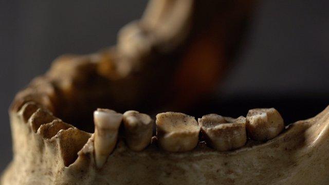 El estudio incluyó un examen de los dientes