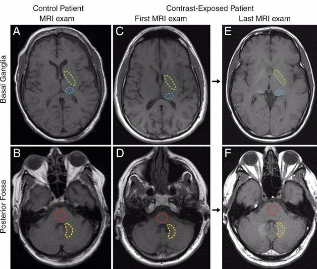 Presencia de gadolinio en el cerebro