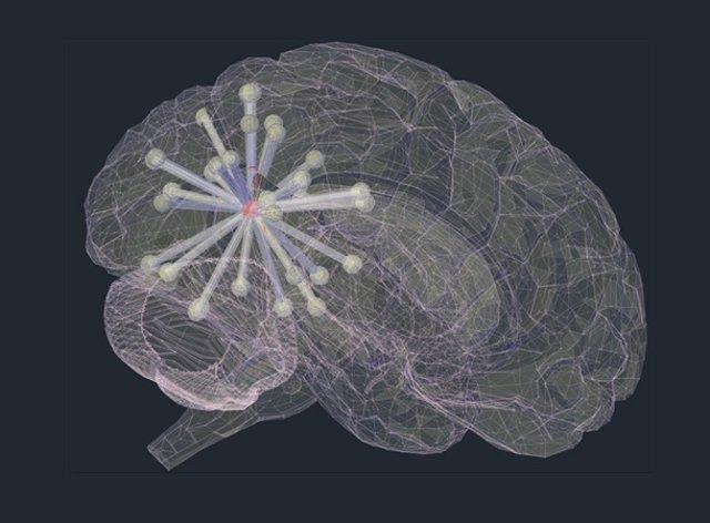Propagación de la proteína tau en el cerebro de un paciente con Alzheimer