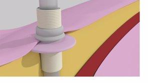 Diseñan un dispositivo para reducir el riesgo de infección en aplicaciones percutáneas como prótesis de fémur y húmero (UPV)