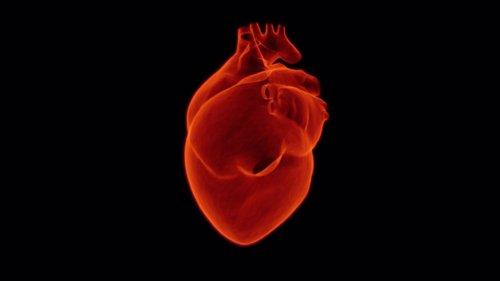 Corazón humano, infarto
