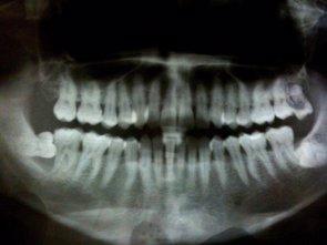 Las periodontitis pueden favorecer el desarrollo del cáncer de páncreas (FLICKR/FELIX E. GUERRERO)