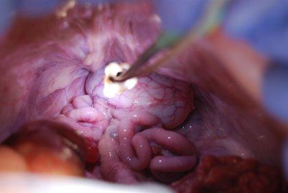 Cirujanos catalanes idean un dispositivo de iluminación que se acopla a instrumentos quirúrgicos