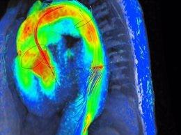 Resonancia magnética cardiaca 4D