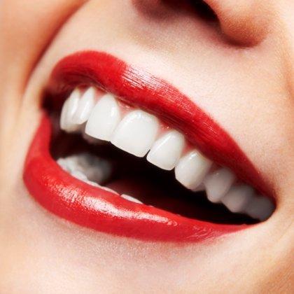 Las ventajas de los implantes de zirconio
