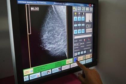 Casi 6.700 extremeñas se hará mamografías en febrero con el Programa de Detección Precoz del Cáncer de Mama