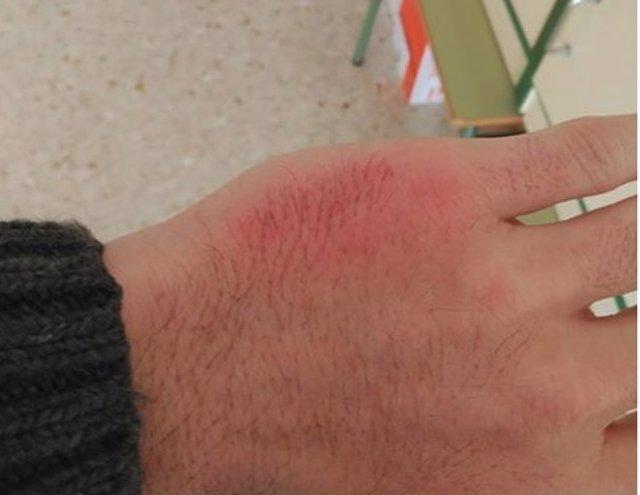 Mano del profesor inflamada por el golpe de un alumno