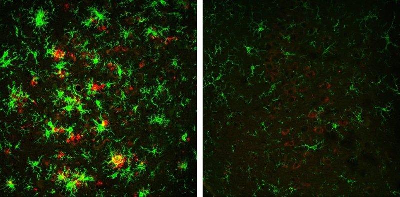 Revierten con éxito el Alzheimer en ratones