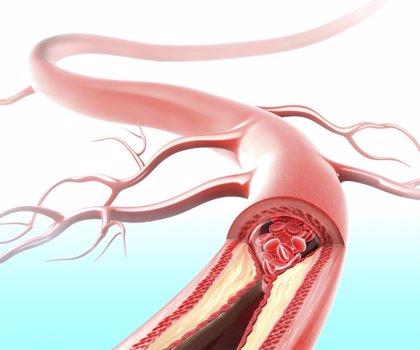 """Detectan cómo el colesterol """"bueno"""" deja de ser cardioprotector en casos de hipercolesterolemia"""