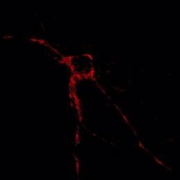 En Rojo, Localización De Mitocondrias En Una Neurona