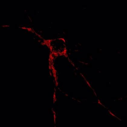 Descubren cómo una molécula 'corrupta' puede desencadenar autoinmunidad