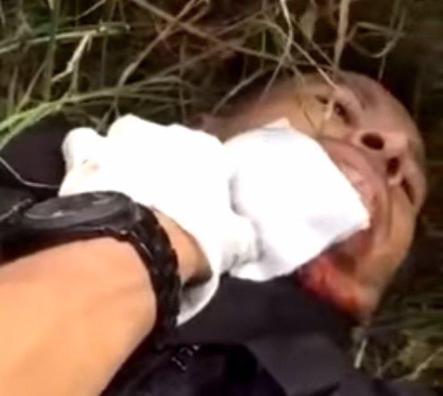Policía México herido