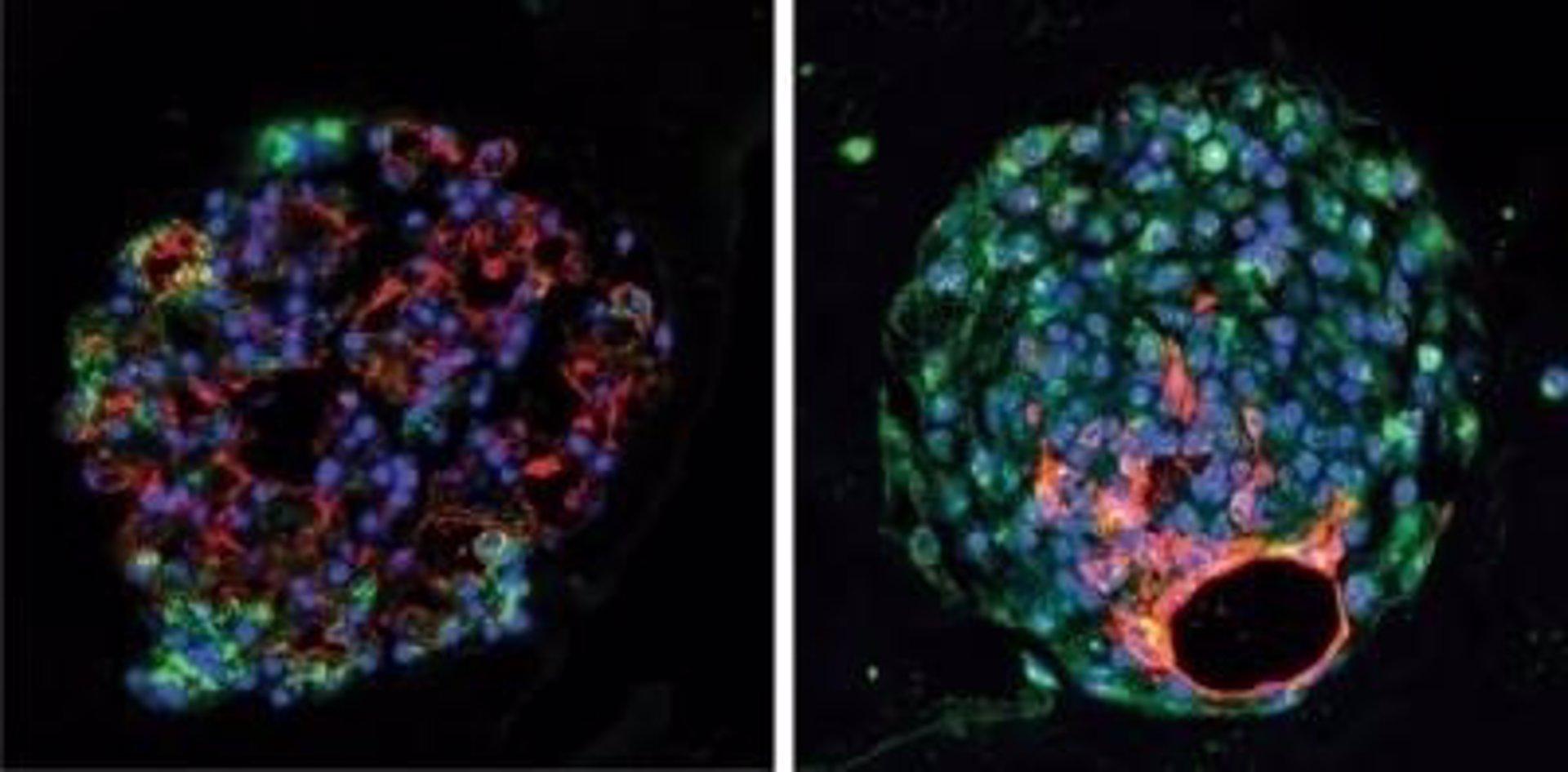 Identifican células madre que ayudan a regenerar el tejido pulmonar