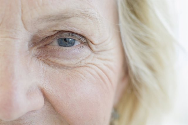 Mujer con arrugas en los ojos.