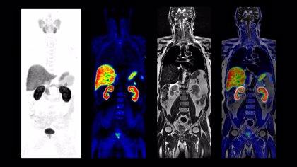 GE Healthcare presenta una técnica híbrida de diagnóstico por imagen que detecta mejor tumores blandos
