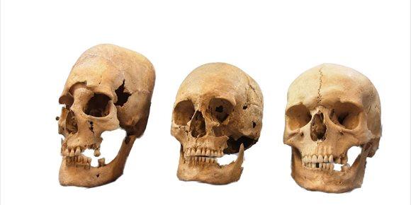8. Explicación a los cráneos alargados de mujer excavados en Baviera