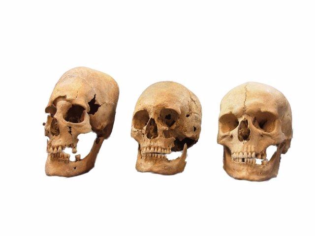 Comparativa de cráneos femennos; deformado, intermedio y no deformado