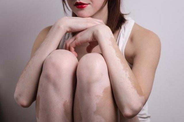 Chica con vitiligo