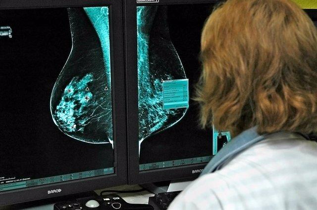 Oncólogos estudian nuevos medicamentos contra el cáncer de mama