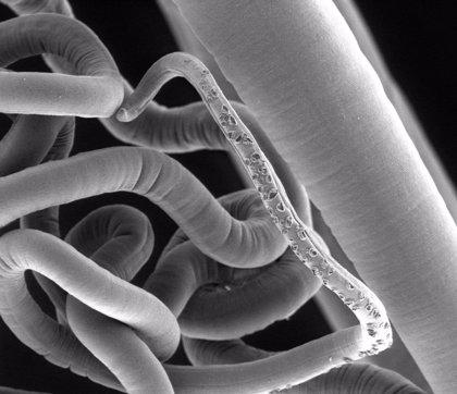 Los gusanos parásitos también necesitan su microflora intestinal
