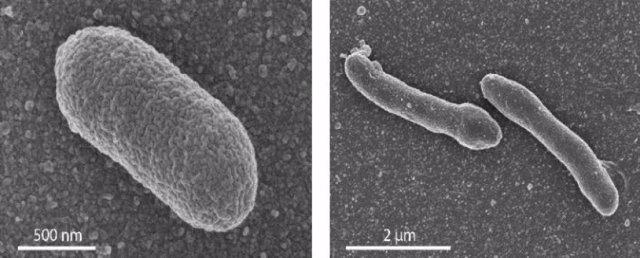 A la izquierda, E. Coli normal, a la derecha célula con membrana mixta