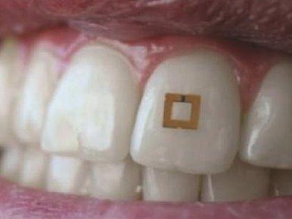 Desarrollan un pequeño sensor adherido al diente que controla los niveles de glucosa, sal o alcohol que se consume