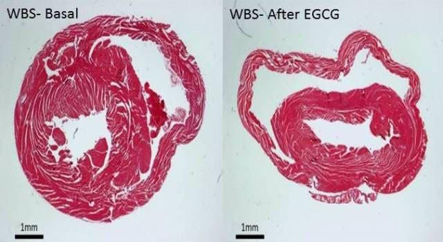 Sección histologia de la pared ventricular de un modelo de WBS