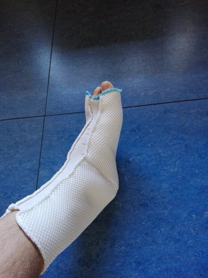Aplican tecnología textil 3D en la prevención de las úlceras por presión en pacientes encamados