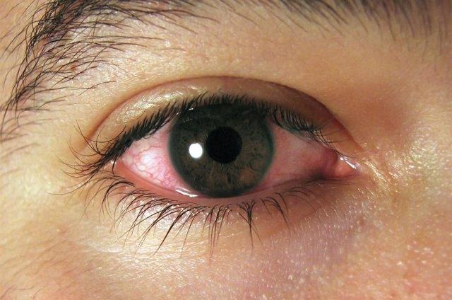 Conjuntivitis. Ojos rojos.