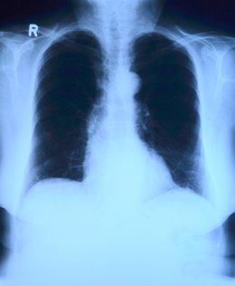 Radiografía pulmones