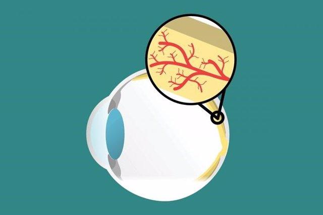 La degeneración macular vinculada al envejecimiento de las células inmunes