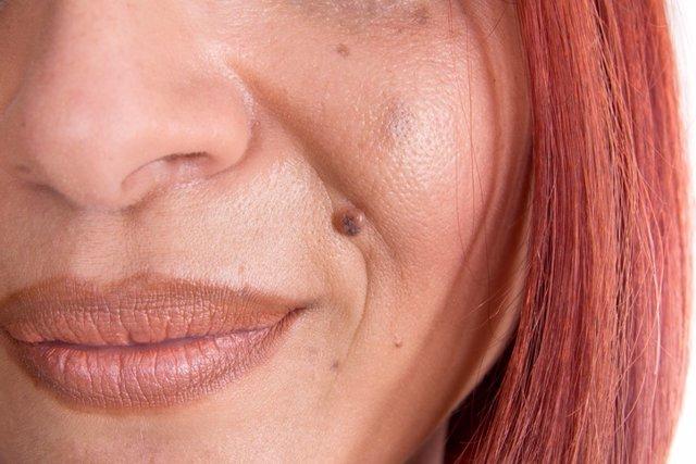 Angioma, lunares, sonrisa, labios, nariz, pelirroja