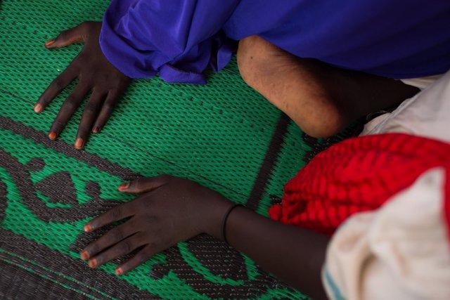 Niña afectada por el conflicto con Boko Haram