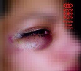 Imagen de archivo de una mujer agredida
