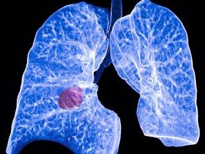 Una combinación de inmunoterapia y quimioterapia mejora la supervivencia global en pacientes con cáncer de pulmón  (ATS - Archivo)