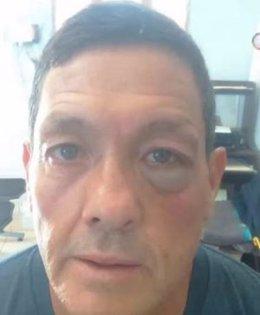 Mauricio Soria, agredido
