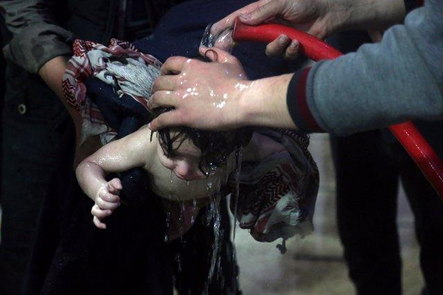 Niño afectado por un supuesto ataque químico en Duma